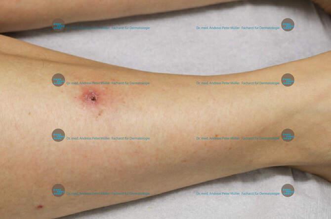 Hautkrebs weißem mir bilder zeige von Hautkrankheiten erkennen